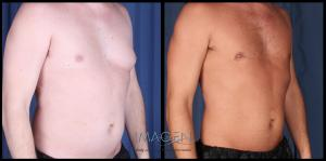 Gynecomastia Before and After Pictures Omaha Cosmetic Surgery