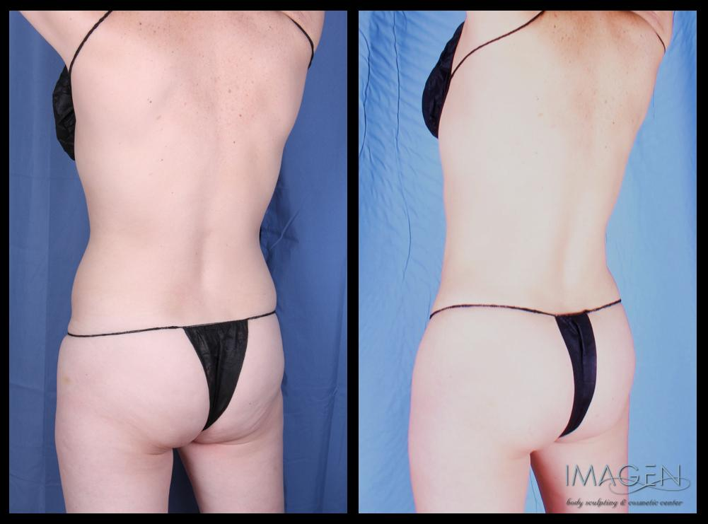 Liposuction Before and After Pictures | Omaha Cosmetic Surgery