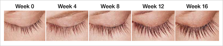 Latisse - Eyelash Growth Omaha Cosmetic Surgery