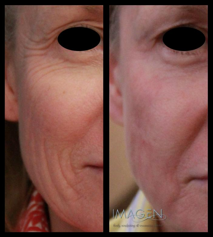 Botox Before & After Omaha Cosmetic Surgery