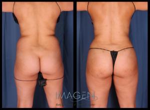 Brazilian Butt Lift Omaha Cosmetic Surgery