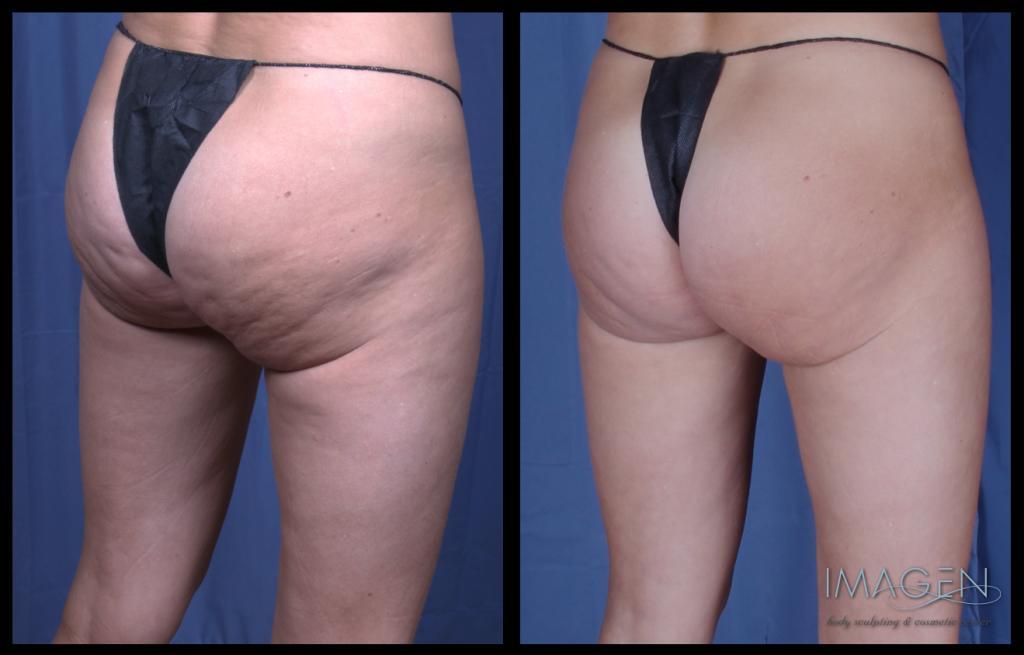 Cellulaze cellulite treatment