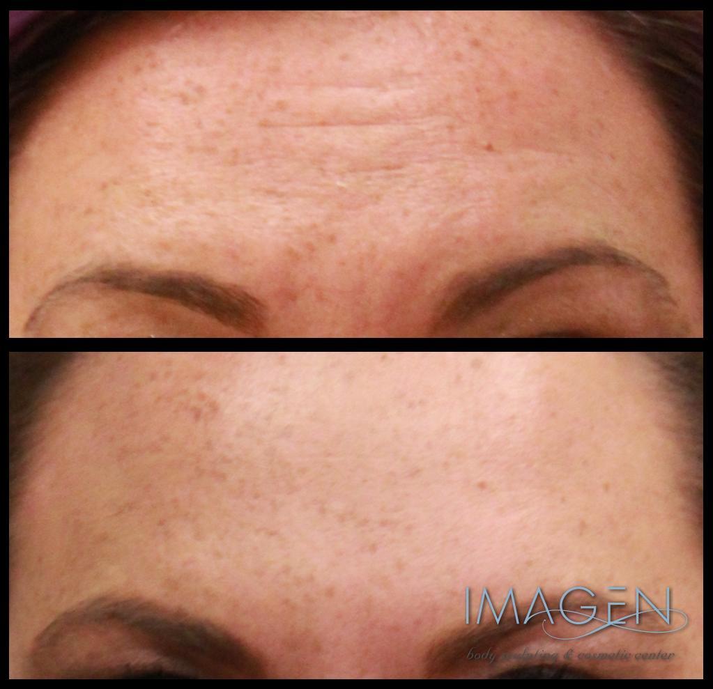dysport botox wrinkles