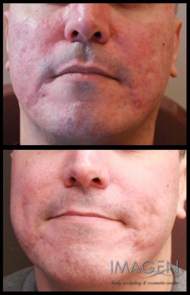 fractional laser acne scars