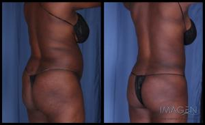 Love Handles Liposuction Omaha Cosmetic Surgery