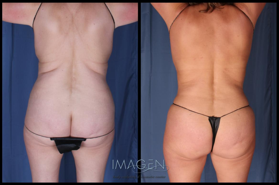 liposuction love handles
