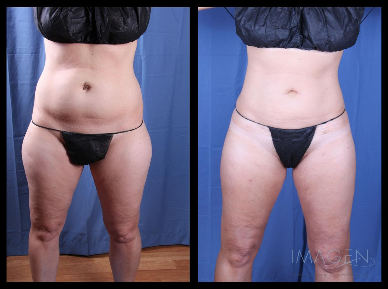 Cellulite Reduction Before & After Omaha Cosmetic Surgery