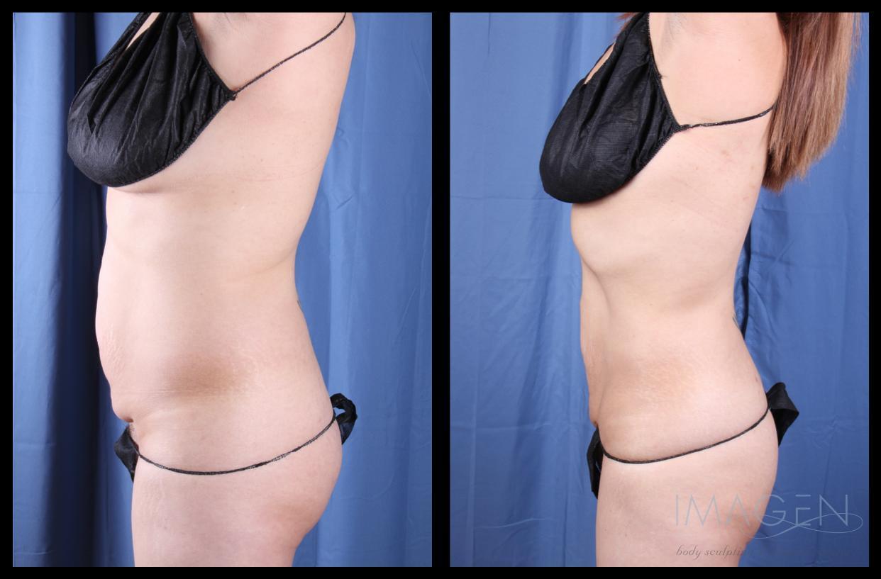Skin Tightening/Collagen Stimulation Omaha Cosmetic Surgery