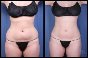 SmartLipo Triplex vs. Traditional Liposuction Omaha Cosmetic Surgery