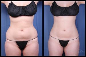 SmartLipo Liposuction