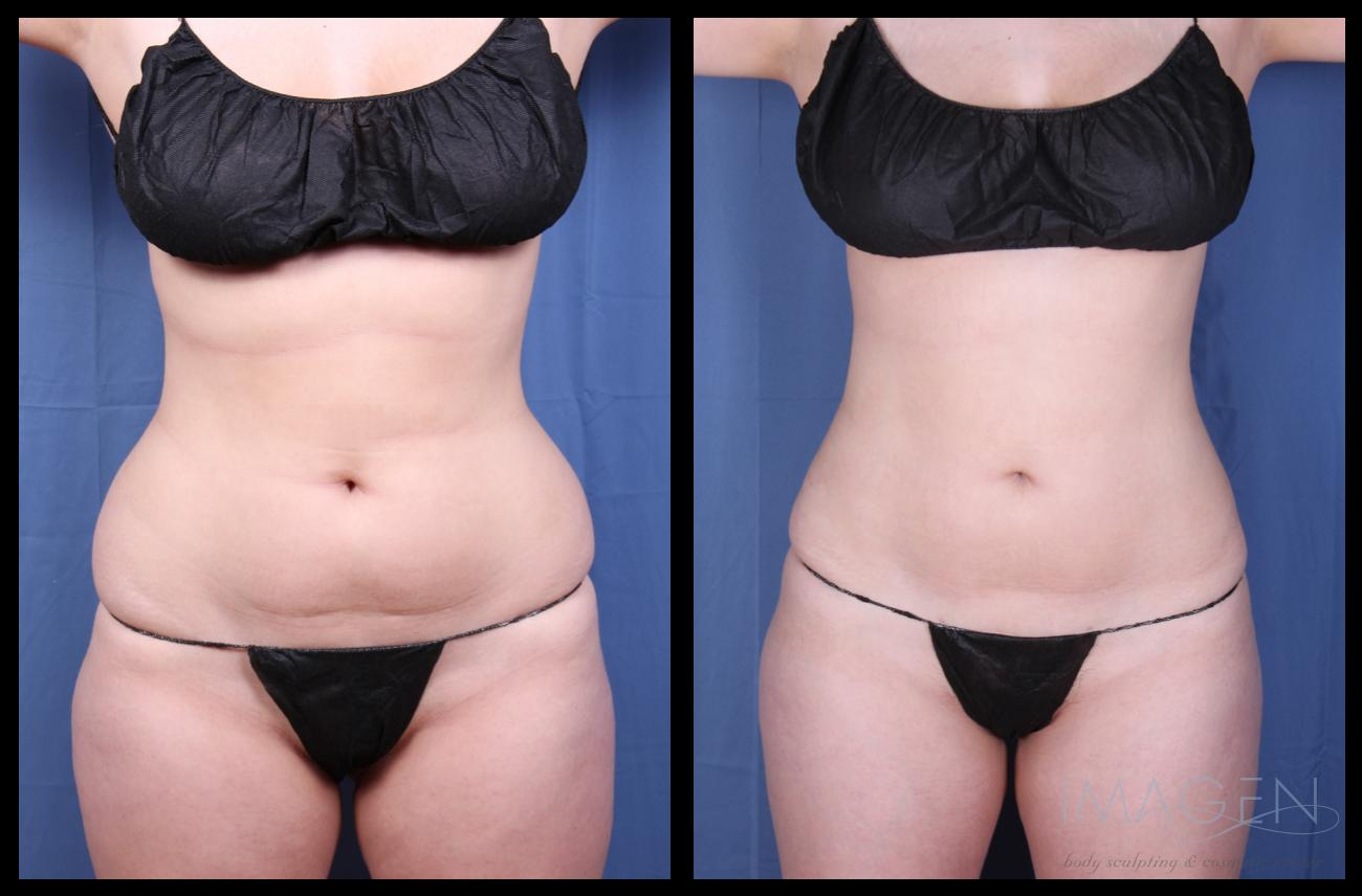 Liposuction Before and After Photos Omaha Cosmetic Surgery