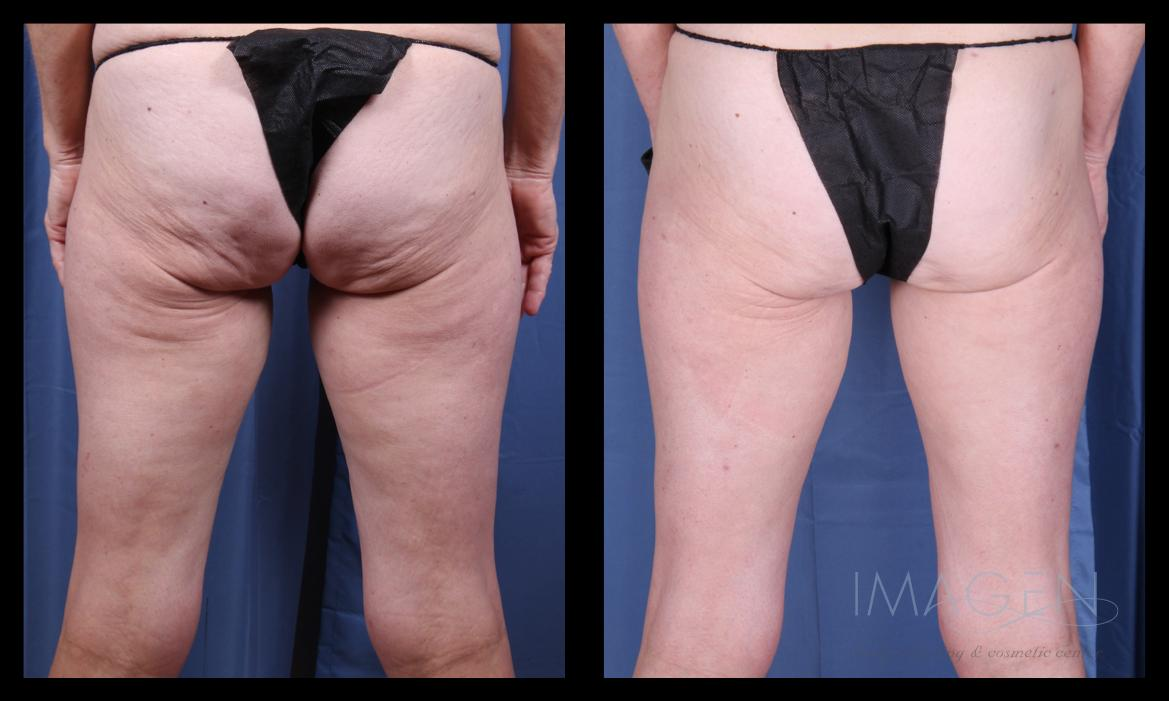 Cellulaze cellulite treatment