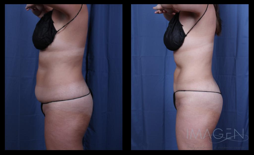 Skin Tightening Omaha Cosmetic Surgery
