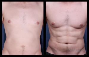 Liposuction - 4D Hi-Definition Lipo Omaha Cosmetic Surgery