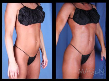 4D Hi Def Liposuction Before & After Omaha Cosmetic Surgery