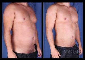 SmartLipo Abdomen, Flanks, Chest