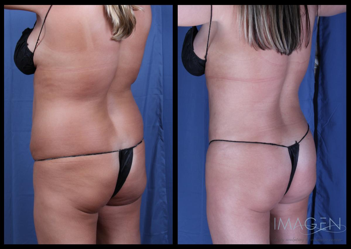 Liposuction Before and After Pictures Omaha Cosmetic Surgery
