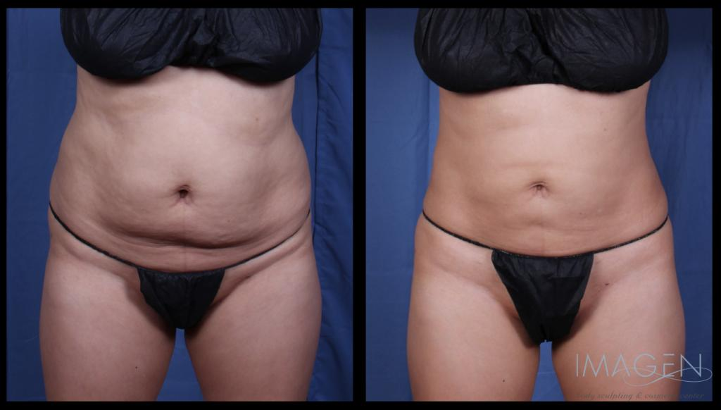smartlipo liposuction abdomen