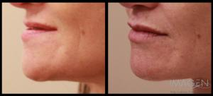 Lip Fillers Omaha Cosmetic Surgery