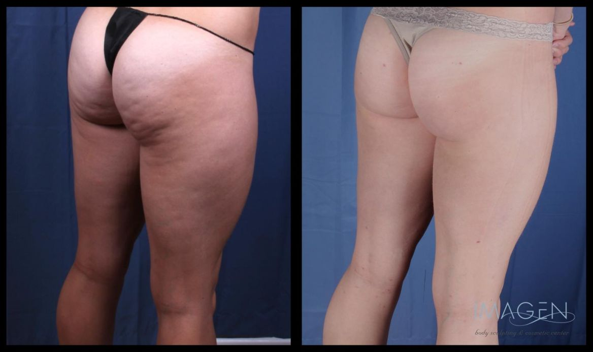 Cellulite treatment: cosmetic procedures