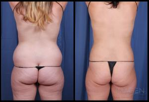 SmartLipo Liposuction Abdomen Love Handles