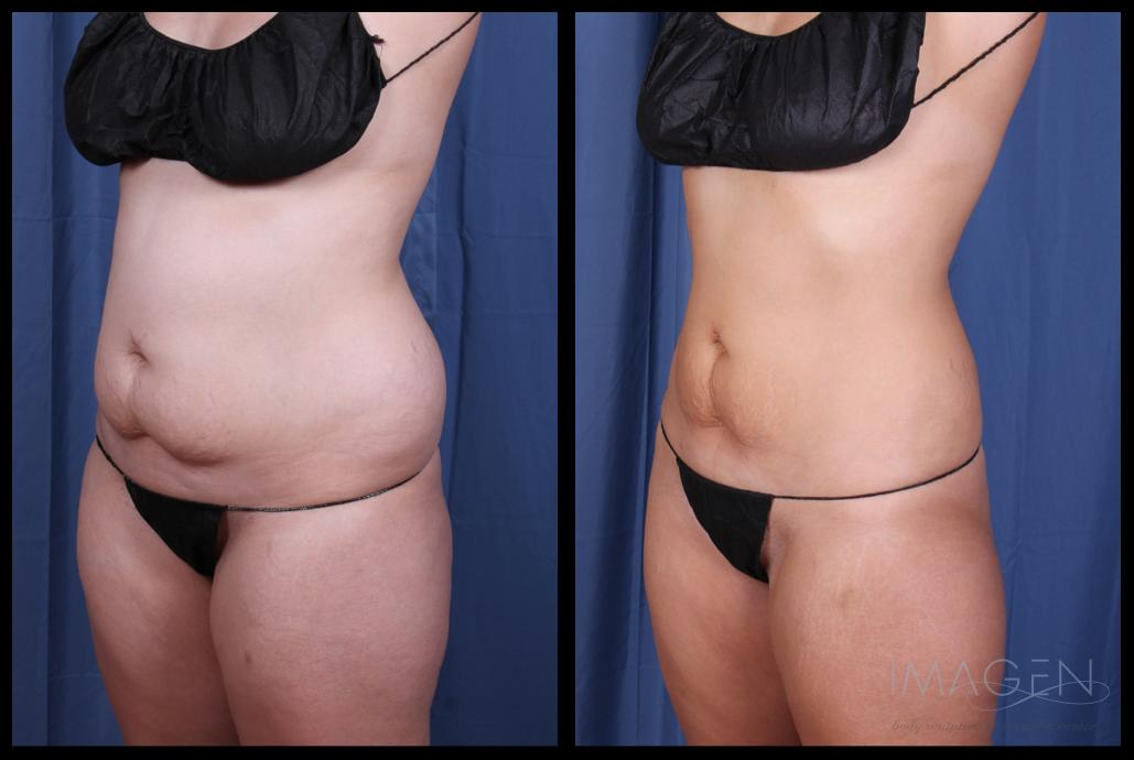 SmartLipo Liposuction Abdomen Love Handles