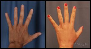 fat transfer hands liposuction