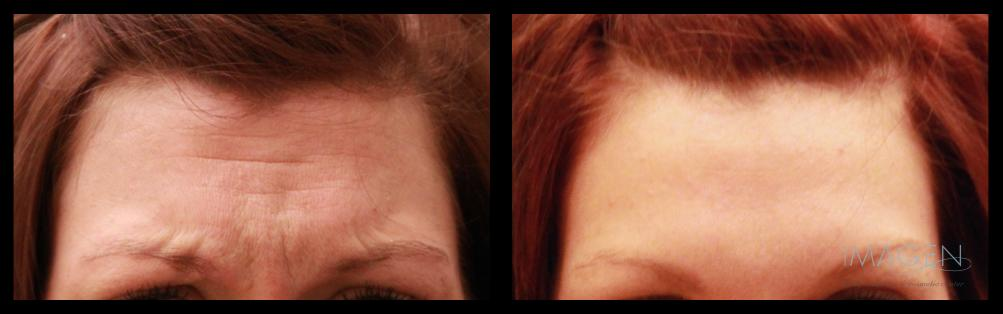 botox wrinkles facial rejuvenation