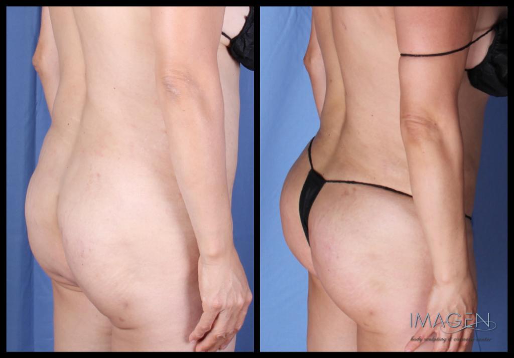 Brazilian butt lift fat transfer buttocks