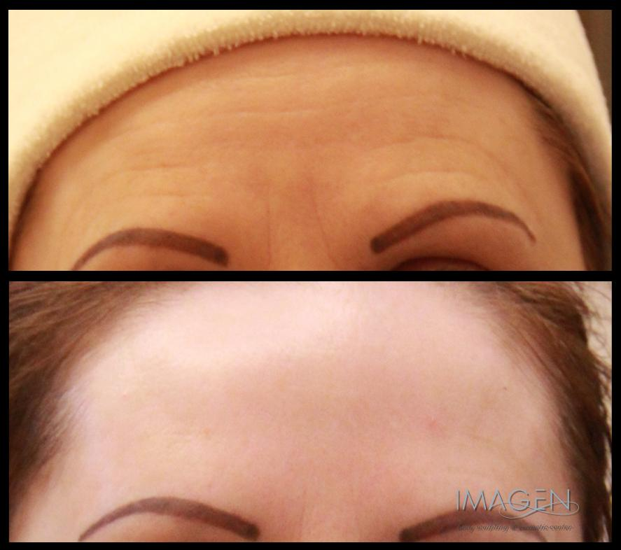 Botox Results Omaha Cosmetic Surgery