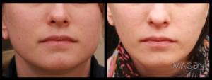 Botox facial taper masseter