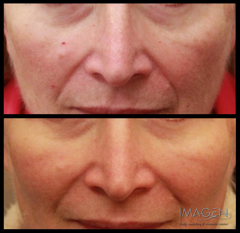 Spider Vein Laser Before & After Omaha Cosmetic Surgery