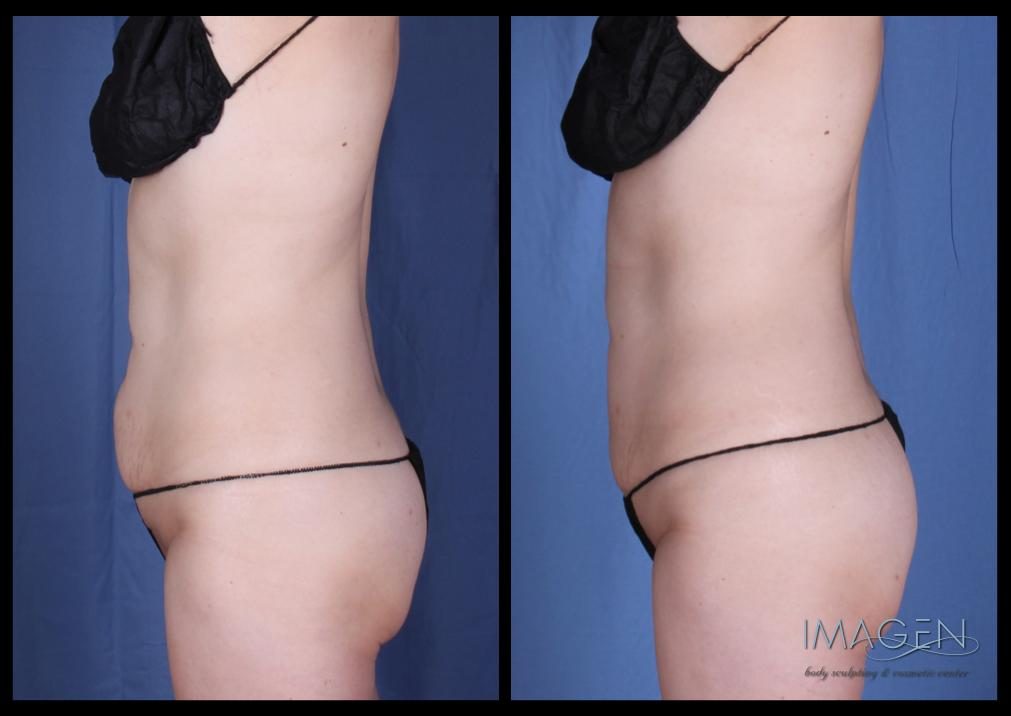 Cool Sculpting Before & After Omaha Cosmetic Surgery