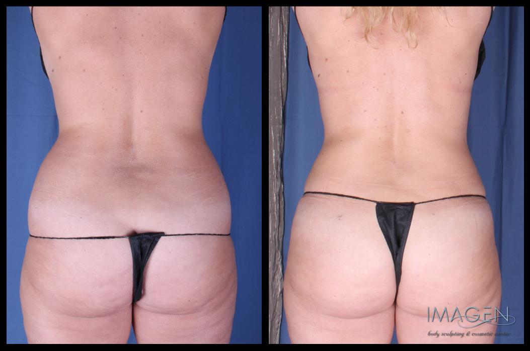 SmartLipo abdomen love handles