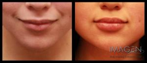 Which Filler Should I Choose? Omaha Cosmetic Surgery