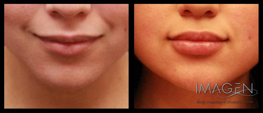 Silk lip augmentation filler