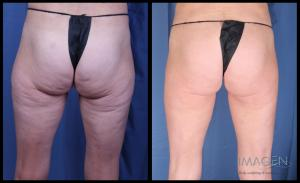 cellulite reduction cellulaze