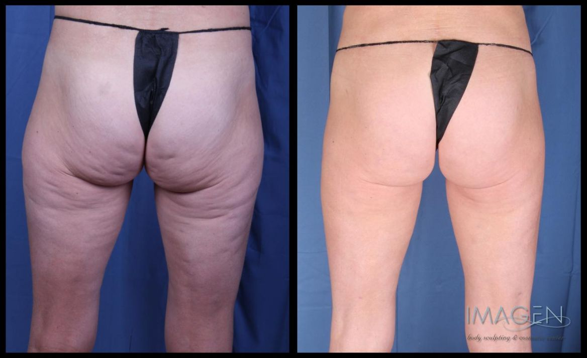 Cellulite Reduction Before Amp After Omaha Cosmetic Surgery