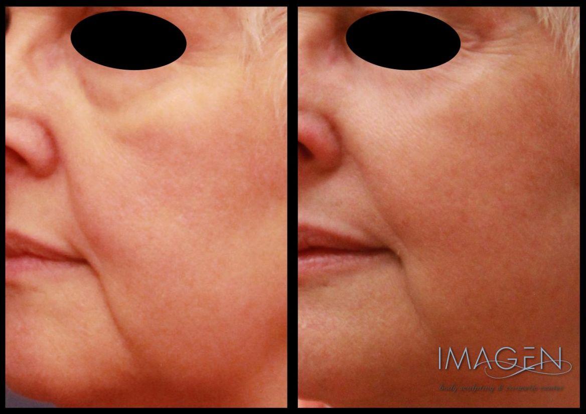 Sculptra facial rejuvenation