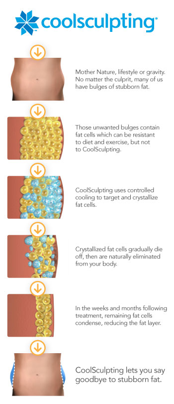 CoolSculpting How It Works Omaha Cosmetic Surgery