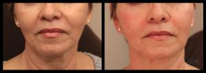 Fillers Omaha Cosmetic Surgery