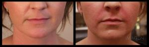 Filler Results Omaha Cosmetic Surgery