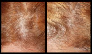 PRP Platelet Rich Plasma Hair Restoration