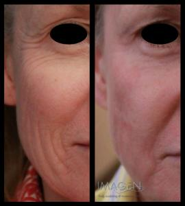 Fractional Laser Resurfacing Omaha Cosmetic Surgery