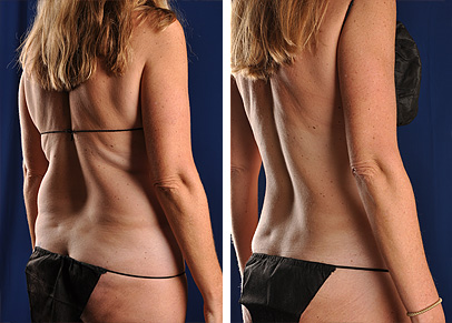 Body Lift Cost >> Liposuction Before and After Photos - Omaha Cosmetic Surgery | SmartLipo in Omaha