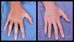 Fat Transfer hand rejuvenation