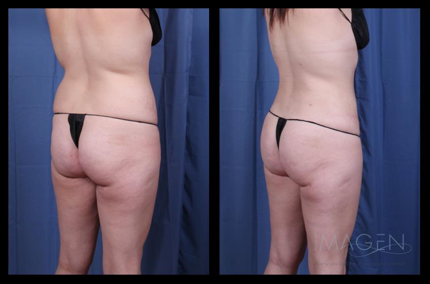 SmartLipo Abdomen Liposuction Brazilian Butt Lift