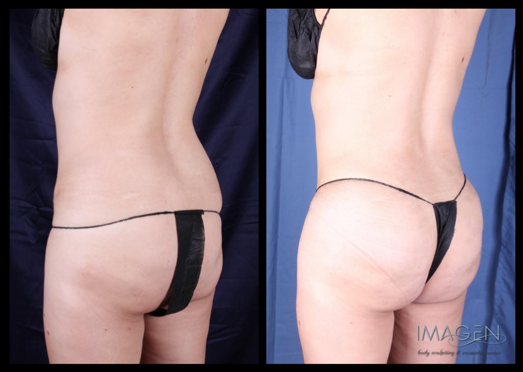 Brazilian Butt Lift fat transfer