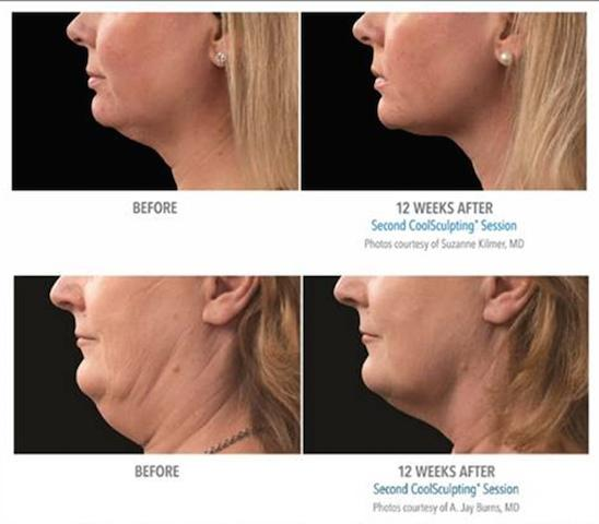 CoolSculpting Double Chin Neck