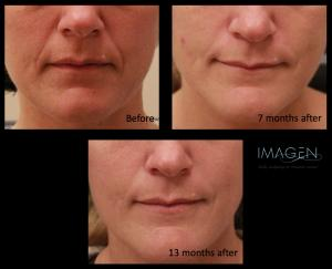 Collagen Stimulation - Sculptra Omaha Cosmetic Surgery